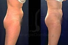 Lipofilling photo avant et après par le Docteur Dombard