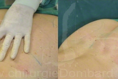 Lipofilling fesses et procedures