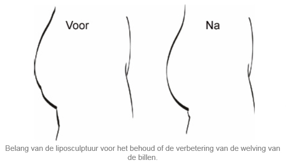 liposculptuur-liposuctie-zones-brussels-belgium-dr-dombard