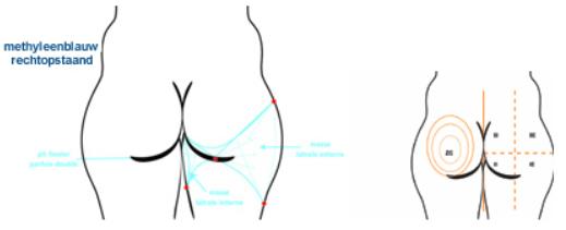liposculptuur-liposuctie-zones-dr-dombard