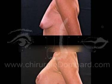 Borstchirurgie Borstptose - hangende borsten.