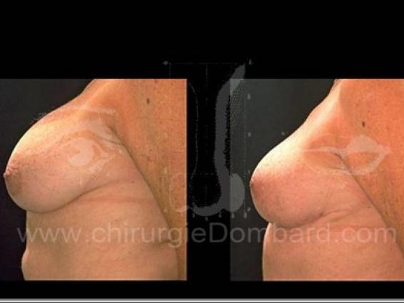 Borstvergroting met implantaten.
