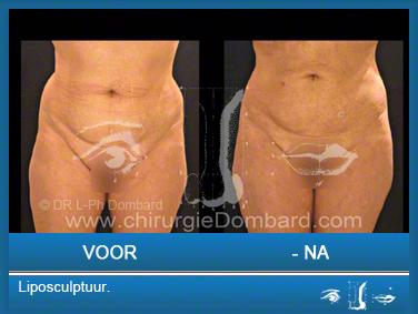 Liposculptuur liposuctie.