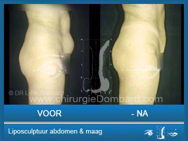 Liposculptuur liposuctie Liposculptuur abdomen & maag.