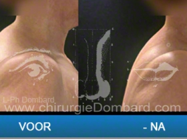 Liposculptuur  liposuctie van de nek - stierenbult.