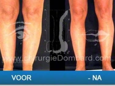 Liposculptuur van knieën, kuiten en enkels