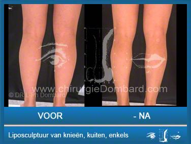 Liposculptuur van knieën kuiten enkels.