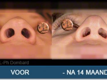 Tertiair neuscorrectie Hersteloperatie Voor -Na 14 Maanden