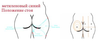 wat kost liposuctie