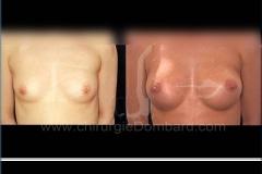 Seins Prothèses mammaire - DR Dombard Bruxelles Belgique