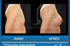 Prothèse ronde rétro-musculaire