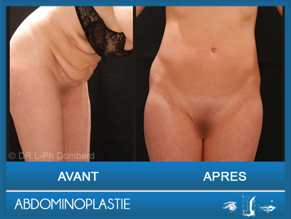Abdominoplastie chirurgie esthétique DR Dombard