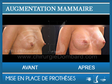 Augmentation mammaire - Photo Avant Apres