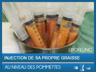 Lipofilling injection de sa propre graisse au niveau des pommettes