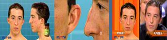 Peeling chirurgie du visage - Otoplastie chirurgie des oreilles décollées - Rhinoplastie Neuscorrectie chirurgie du nez Belgique DR Dombard