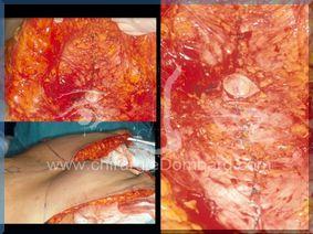 Abdominoplastie - Plicature des muscles abdominaux - Résection excès de peau et de tissus graisseux - DR Dombard Bruxelles - Belgique
