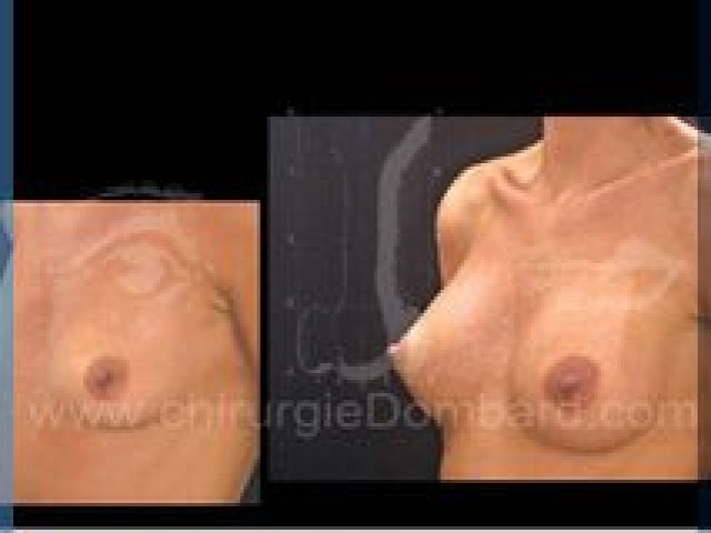 Augmentation mammaire en Belgique par spécialiste.