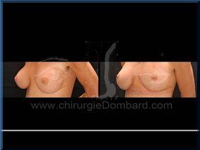 Chirurgie mammaire chirurgie seins avec changement de prothèses - DR Dombard Bruxelles Belgique