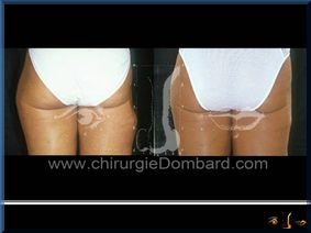 Lipofilling (liposuccion) correction cicatrice - DR Dombard Bruxelles Belgique