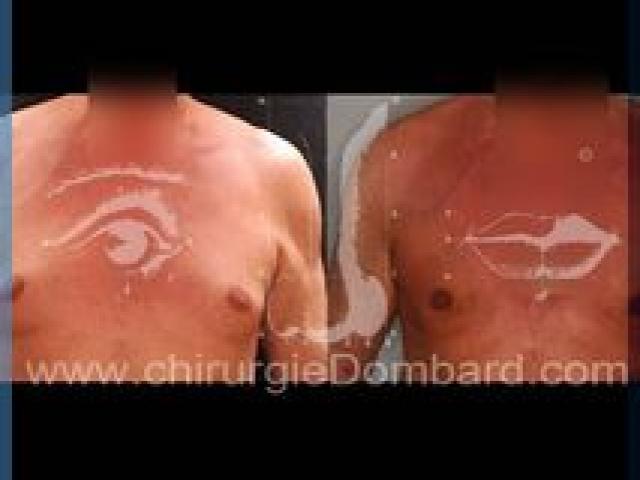 Liposculpture (liposuccion) Gynecomastie - DR Dombard Bruxelles Belgique