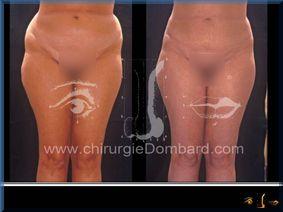 Liposculpture (liposuccion) taille et hanches – Abdomen - DR Dombard Bruxelles Belgique