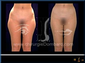 Liposculpture (liposuccion) Culotte Bas des fesses face interne - lipofilling fesses - DR Dombard Bruxelles Belgique