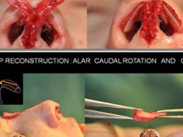 Rhinoplastie Primaire - Pendant l'opération: reconstruction de la pointe du nez