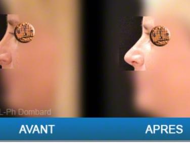 Reprise: Patiente opérée dans une autre clinique auparavant - Rhinoplastie Secondaire vue Avant - Après