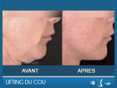 Lifting cervical - Lifting du cou