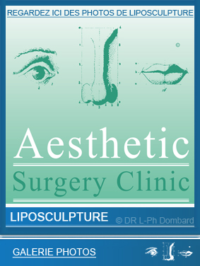 liposculpture-liposuccion