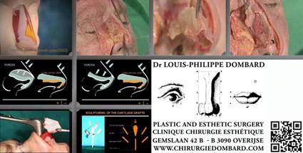 Rhinoplastie Anatomie du nez - Haute Chirurgie Esthétique. DR L-Ph. Dombard.