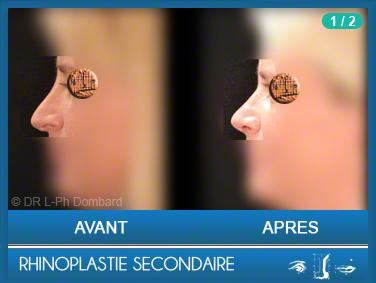 Chirurgie esthétique Rhinoplastie Secondaire par chirurgien spécialiste du nez