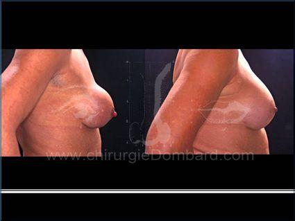 Prothèse depuis 22 ans. Coque péri-prothétique. Résultat de la correction 3 mois. Seins Proteses mammaire