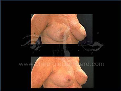 Coque sur prothèse ronde. Correction + prothèse anatomique rétro-glandulaire. Seins Proteses mammaire