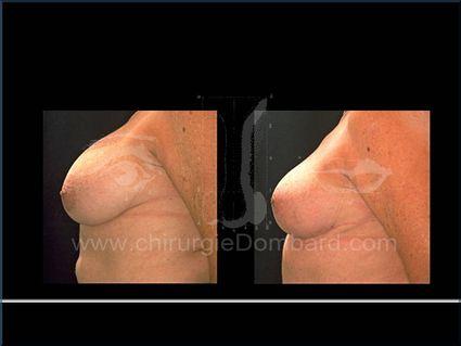 Coque sur prothèse ronde. Correct ion + prothèse anatomique rétro-glandulaire.Seins Proteses mammaire