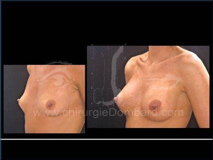 Prothèses rétro-glandulaire anatomiques. Seins Proteses mammaire