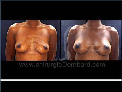 Avant - Après. Vue de face. P rothèses anatomiques. 300cc. Résultats 1 an.Seins Proteses mammaire