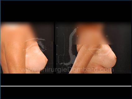 Vue de profile. Présence coque. Changement prothèse rétro-glandulaire anatomique. Résultat après 3 semaines. Seins Proteses mammaire