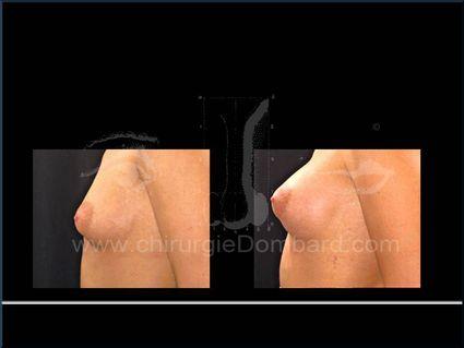 Avant - Après. Prothèses ronde rétro-musculaire. 6 mois. Seins Proteses mammaire