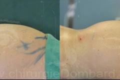 Lipofilling fesses et procedures