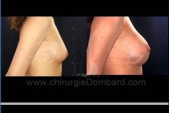 Borstvergroting (met implantaten)