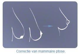 Borstlift – borstversteviging Corrrectie ptose