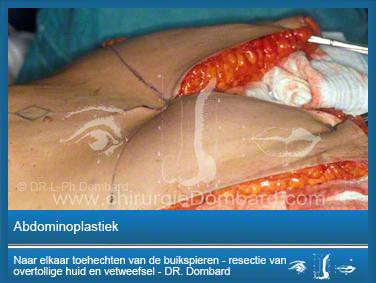 Abdominoplastiek - Naar elkaar toehechten van de buikspieren - resectie van overtollige huid en vetweefsel