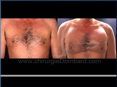 Borstchirurgie Pectorale implantaten.
