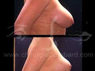 Borstchirurgie Varia.