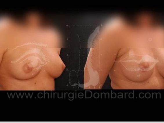 Borstchirurgie Protheses voor en na.