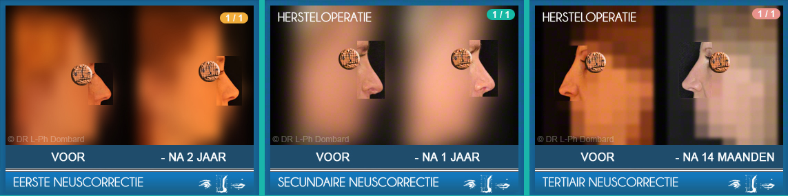 Eerste neuscorrectie - Secundaire neuscorrectie - Tertiair neuscorrectie