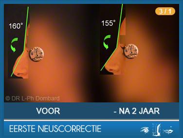 Eerste neuscorrectie Voor -Na 2 Jaar - Angle fronto-nasal