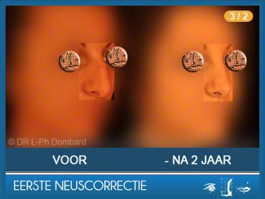 Eerste neuscorrectie Voor -Na 2 Jaar