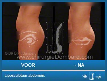 Liposculptuur liposuctie abdomen.